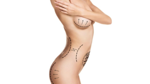 Breast + Lipectomy (Mommy Makeover) in Colombia (By PLB)